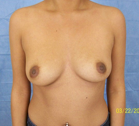 Breast Implants Before