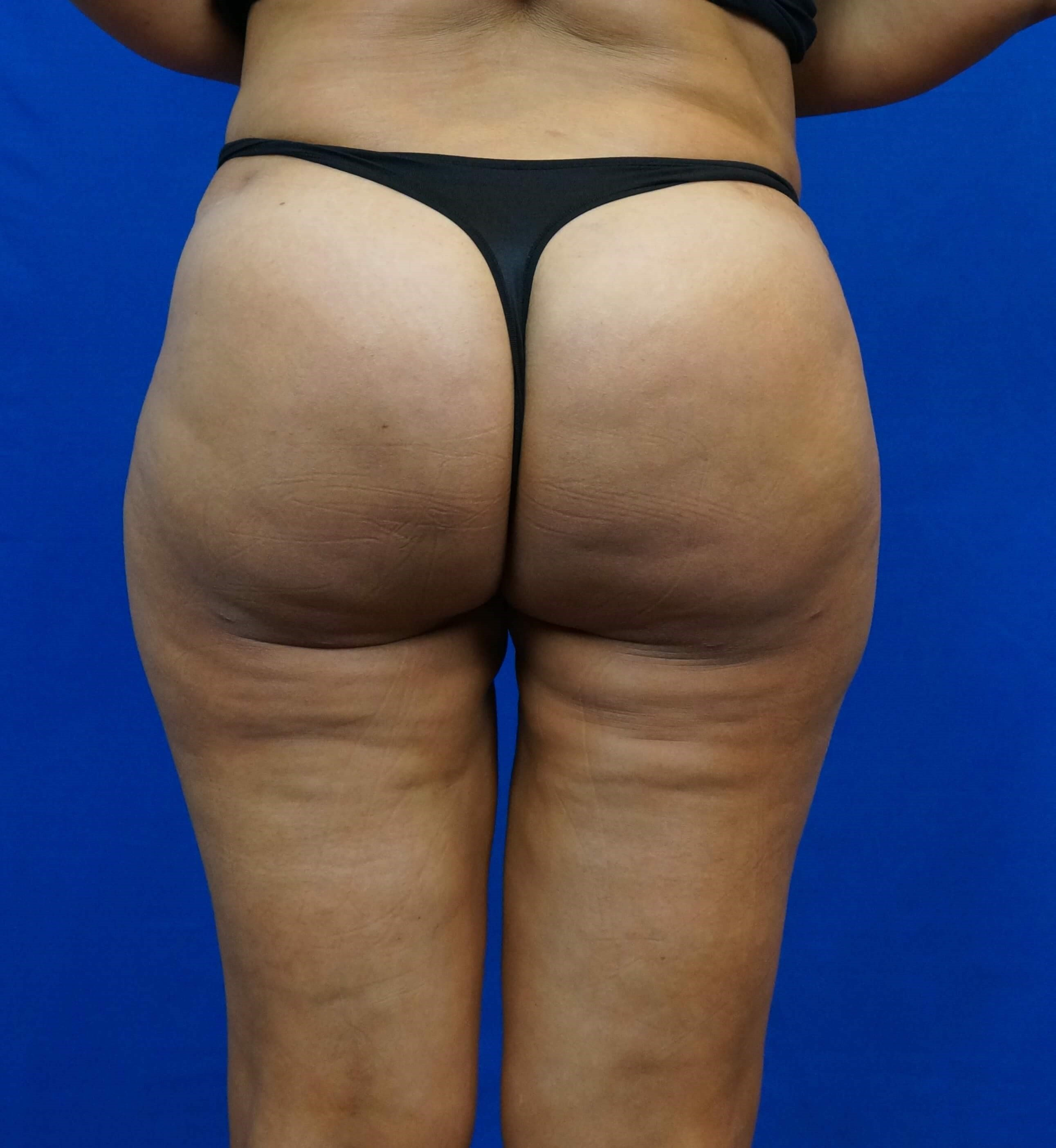 Posterior After