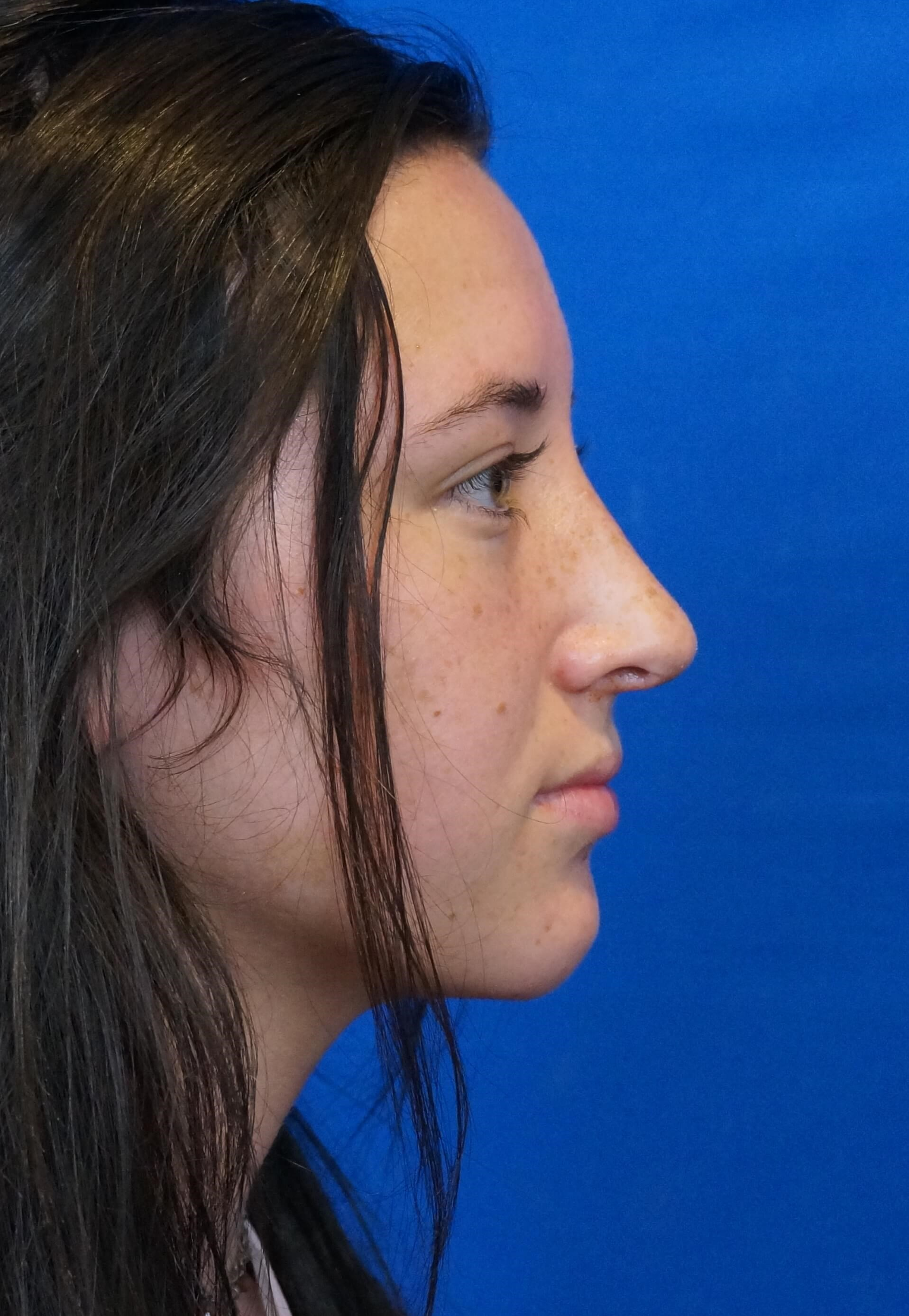 Rhinoplasty Right Side After