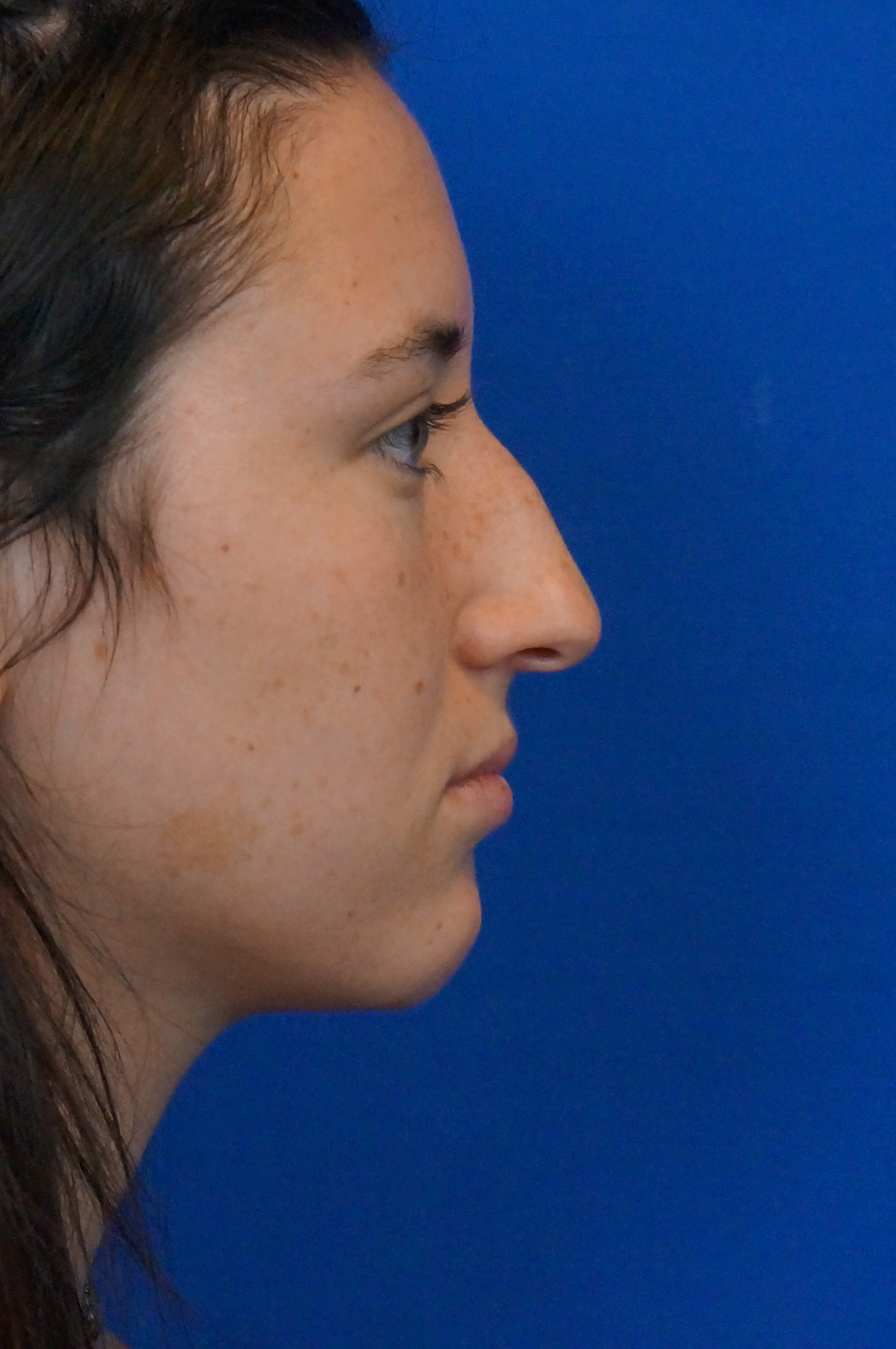 Rhinoplasty Right Side Before