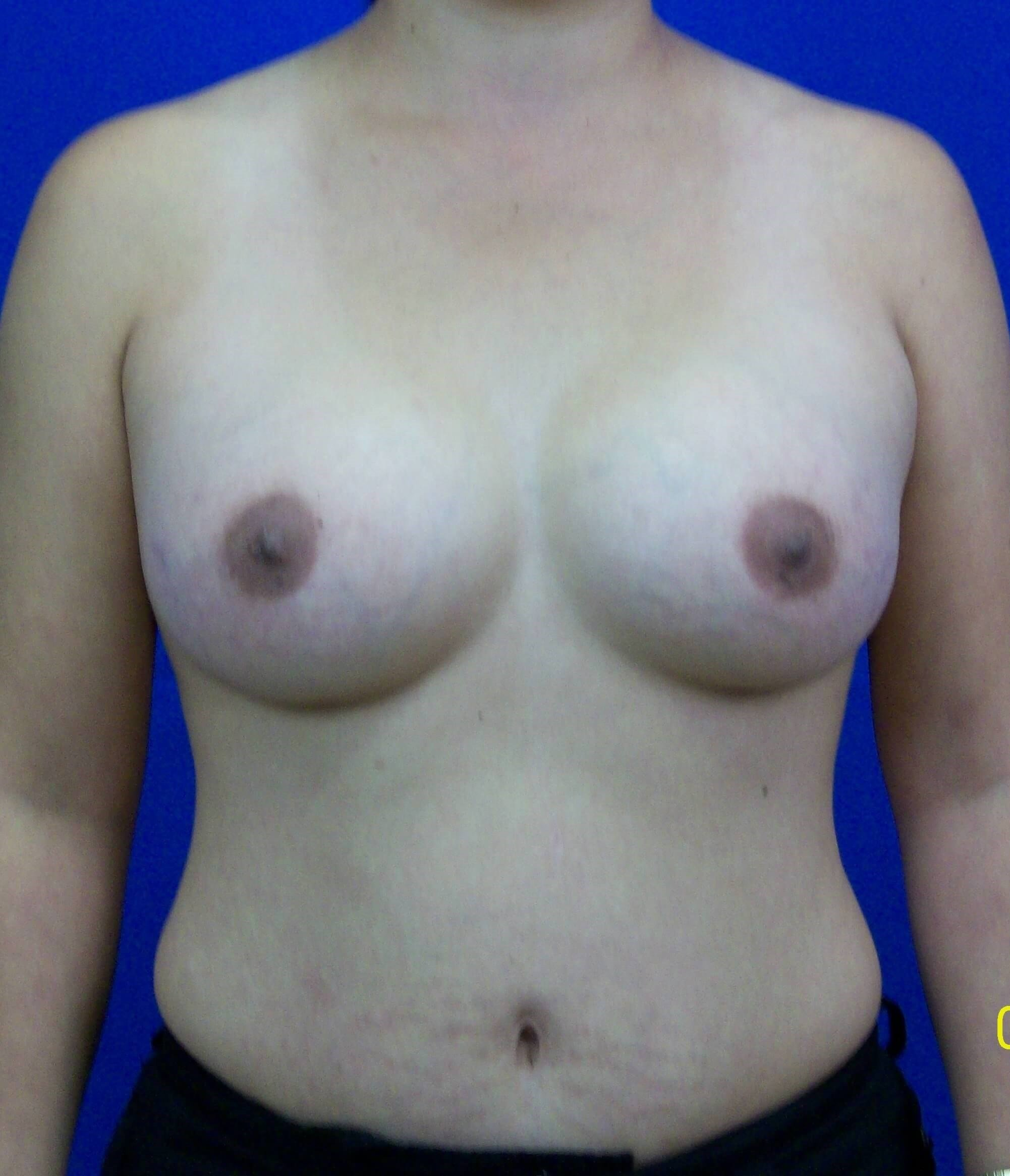 Breast front After