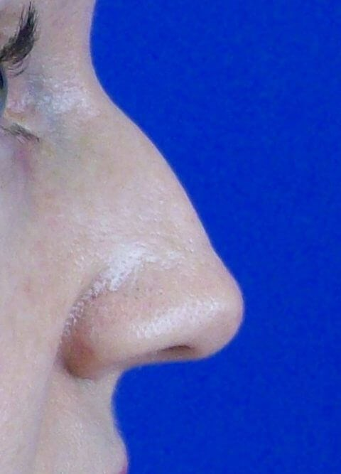 Closed Rhinoplasty Before