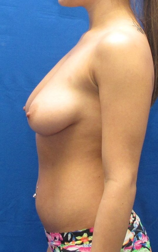 Shaped Breast Implant Before