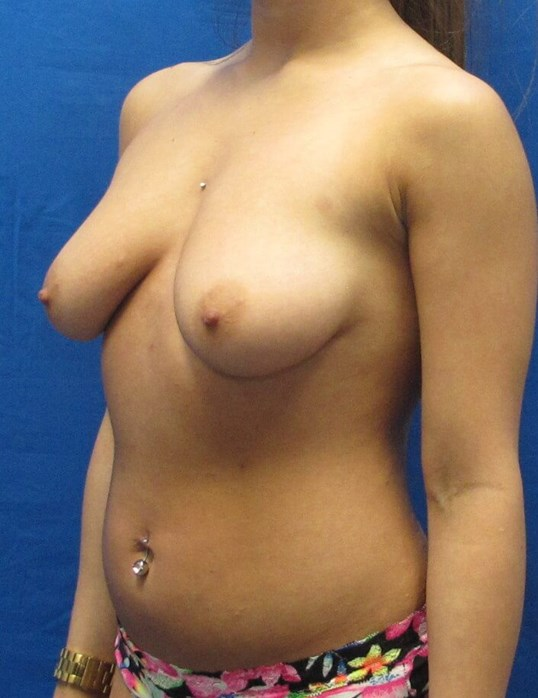 Shaped Silicone Implants Before
