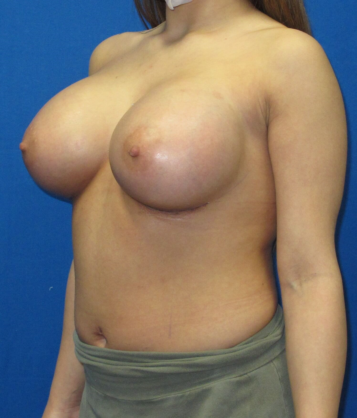 Shaped Silicone Implants After