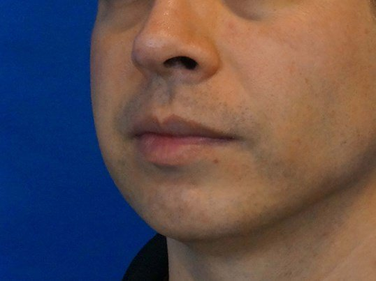 Three Quarters Chin Implant Before