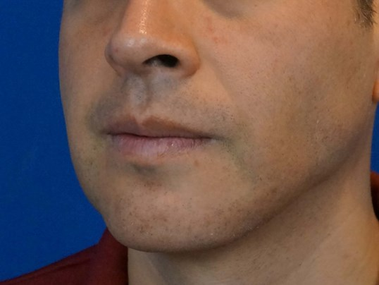 Three Quarters Chin Implant After