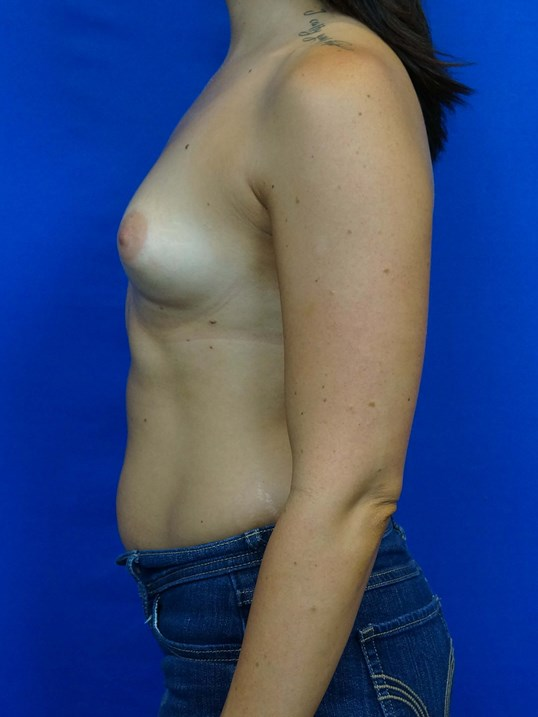 Breast Implants Las Vegas Before