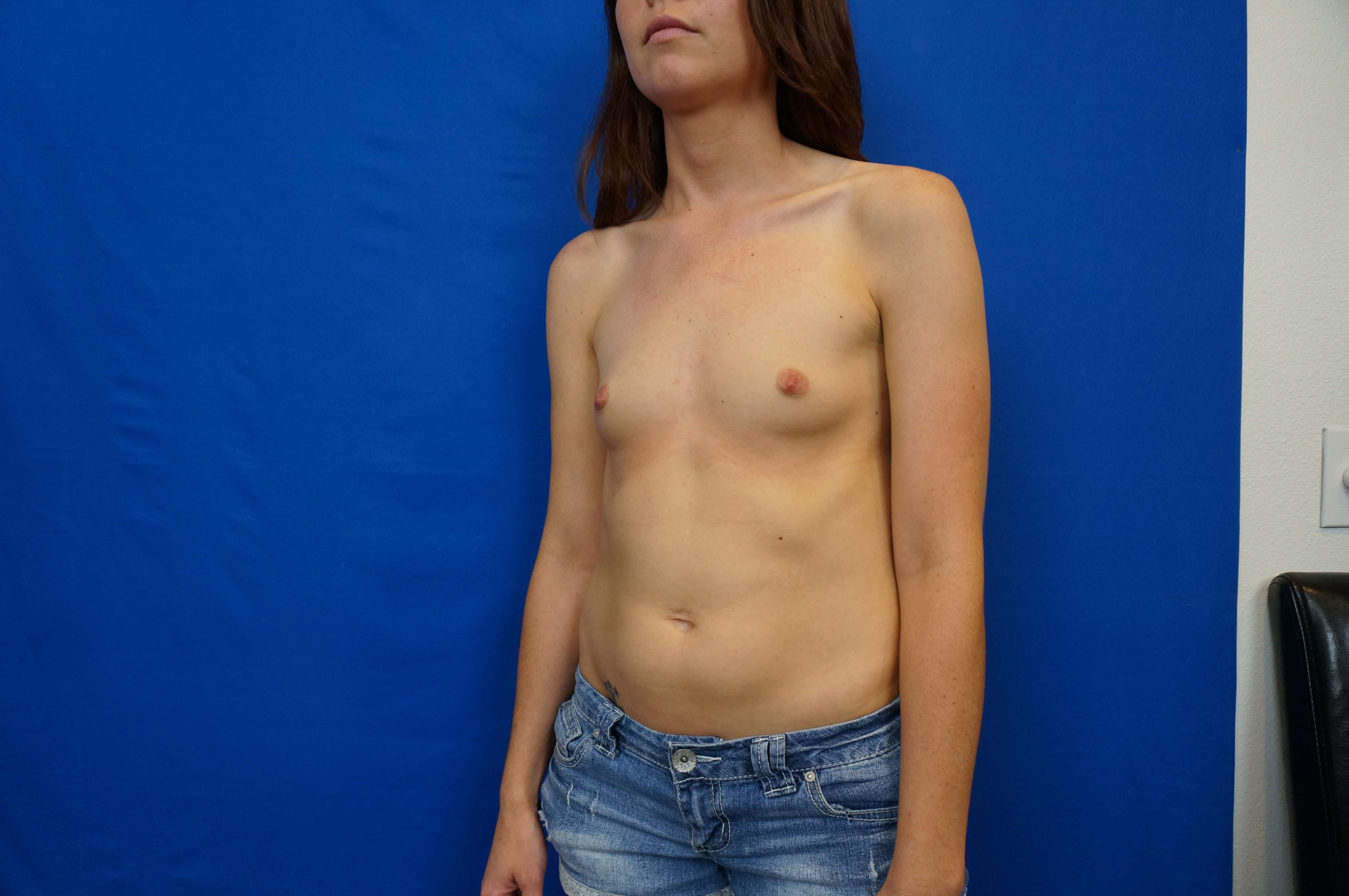 Breast Augmentation Las Vegas Before