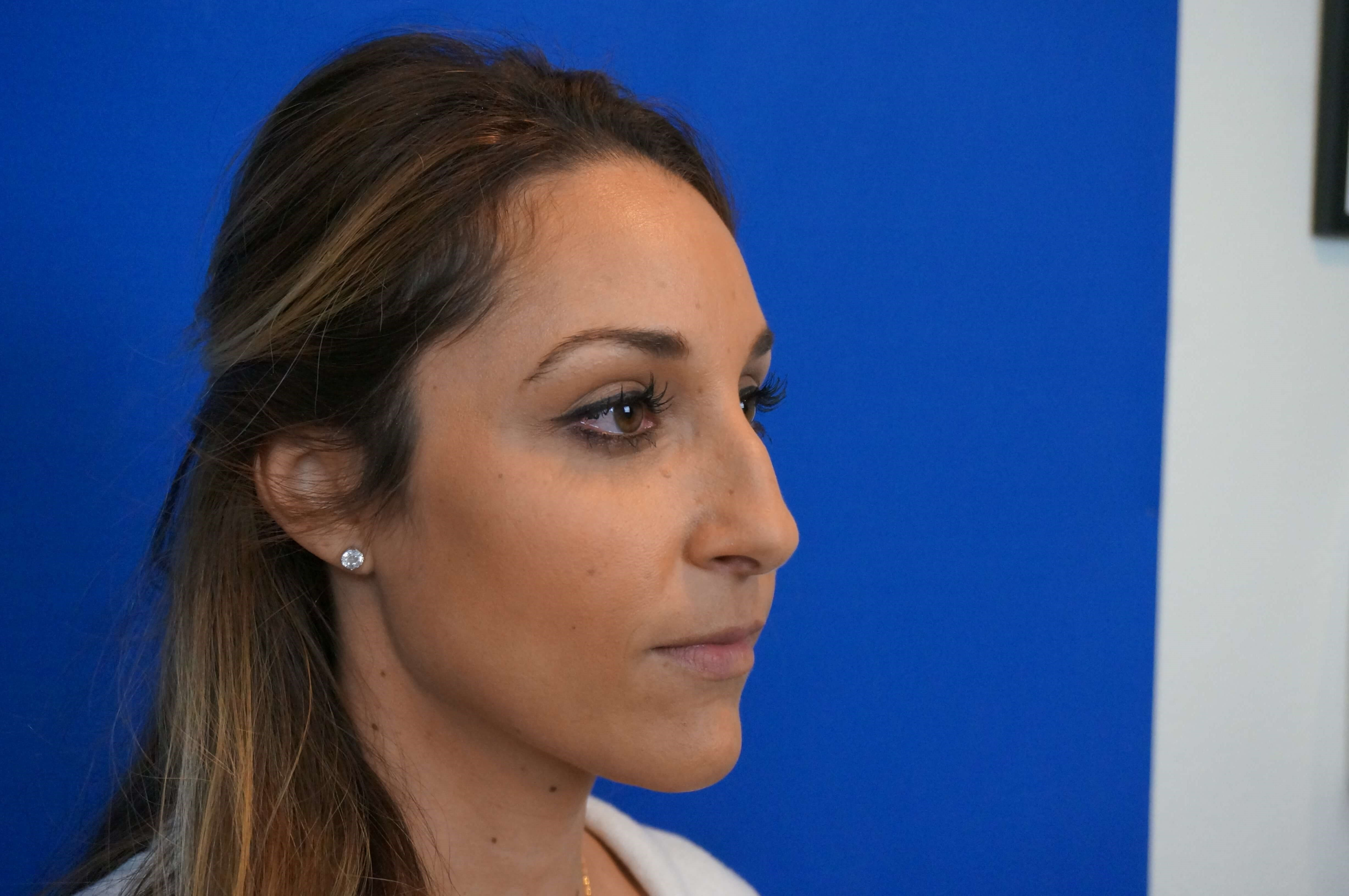 Rhinoplasty Specialist Before