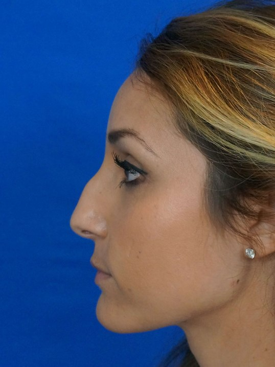 Rhinoplasty Nevada Before