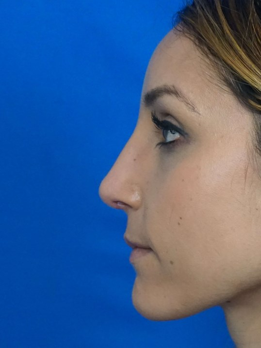 Rhinoplasty Nevada After