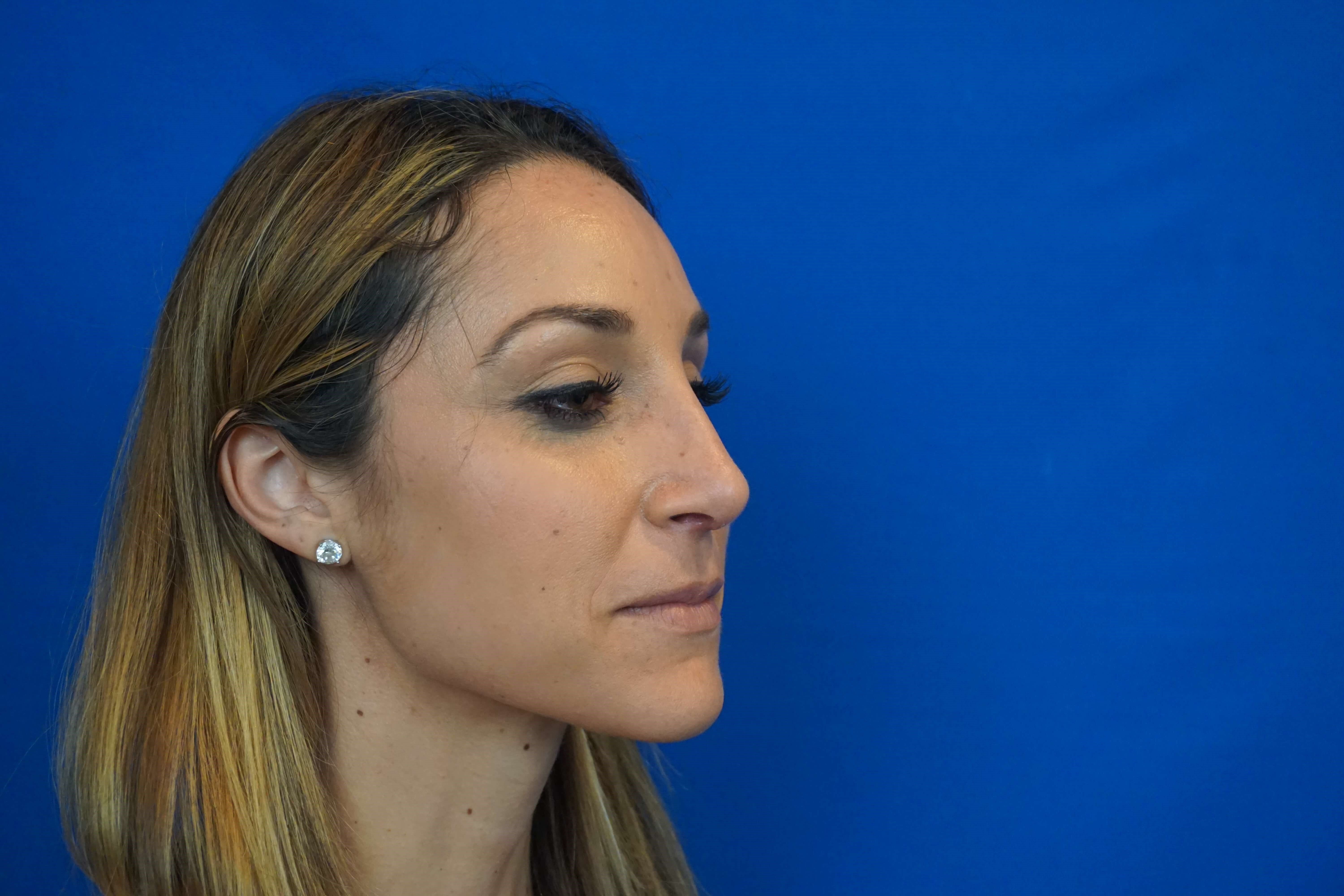 Rhinoplasty Specialist After