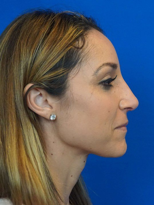 Rhinoplasty Las Vegas After