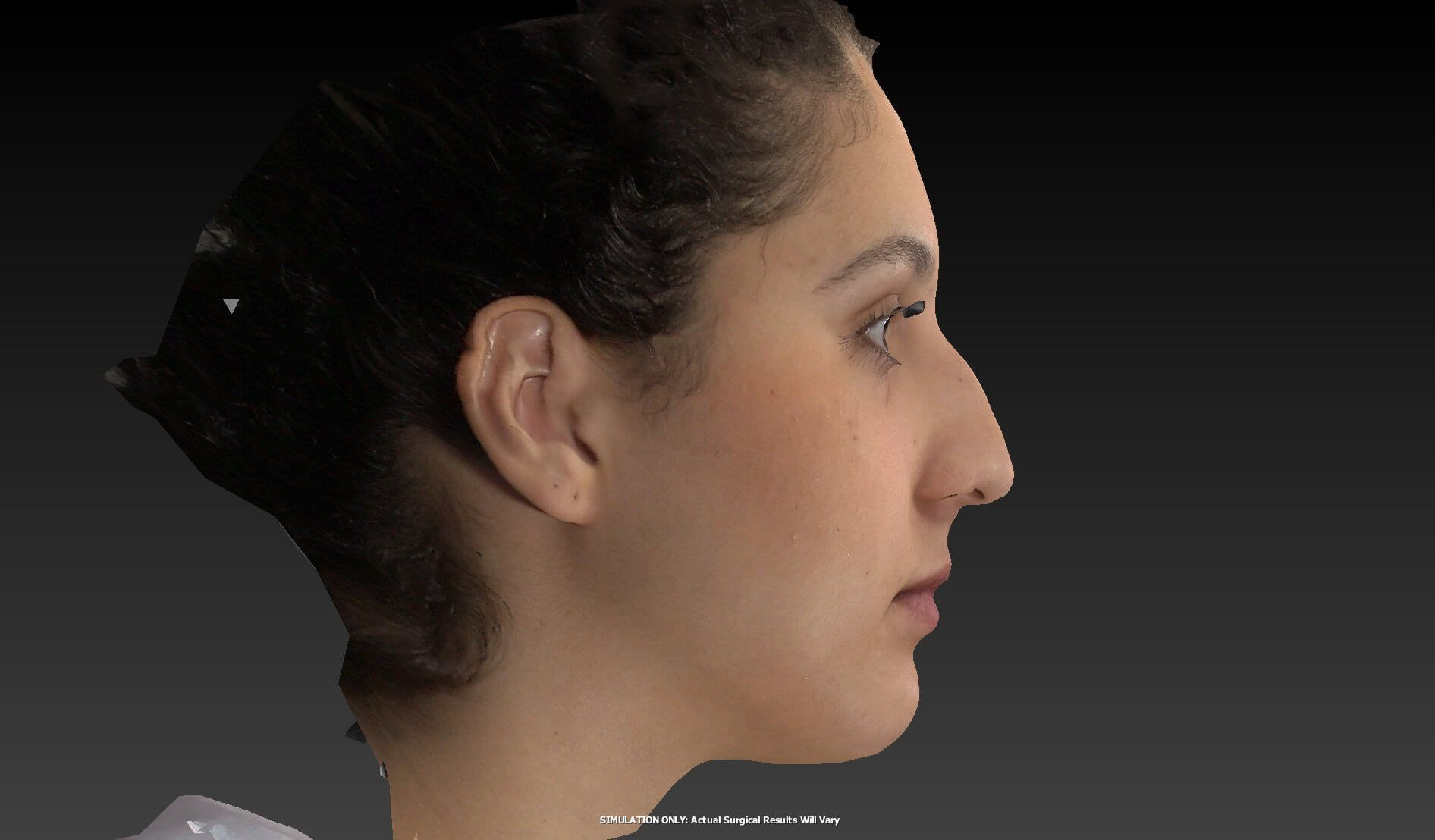 Las Vegas Rhinoplasty Before
