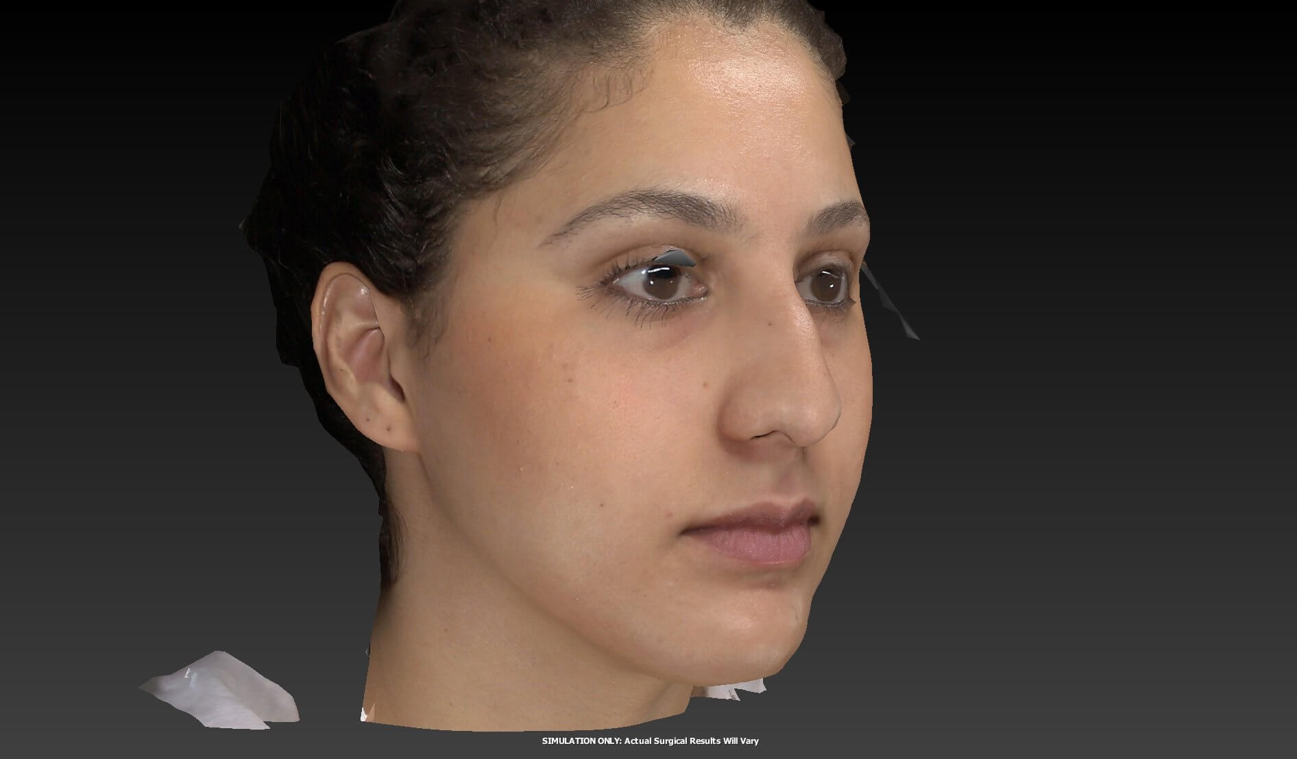 Rhinoplasty Specialist Nevada Before