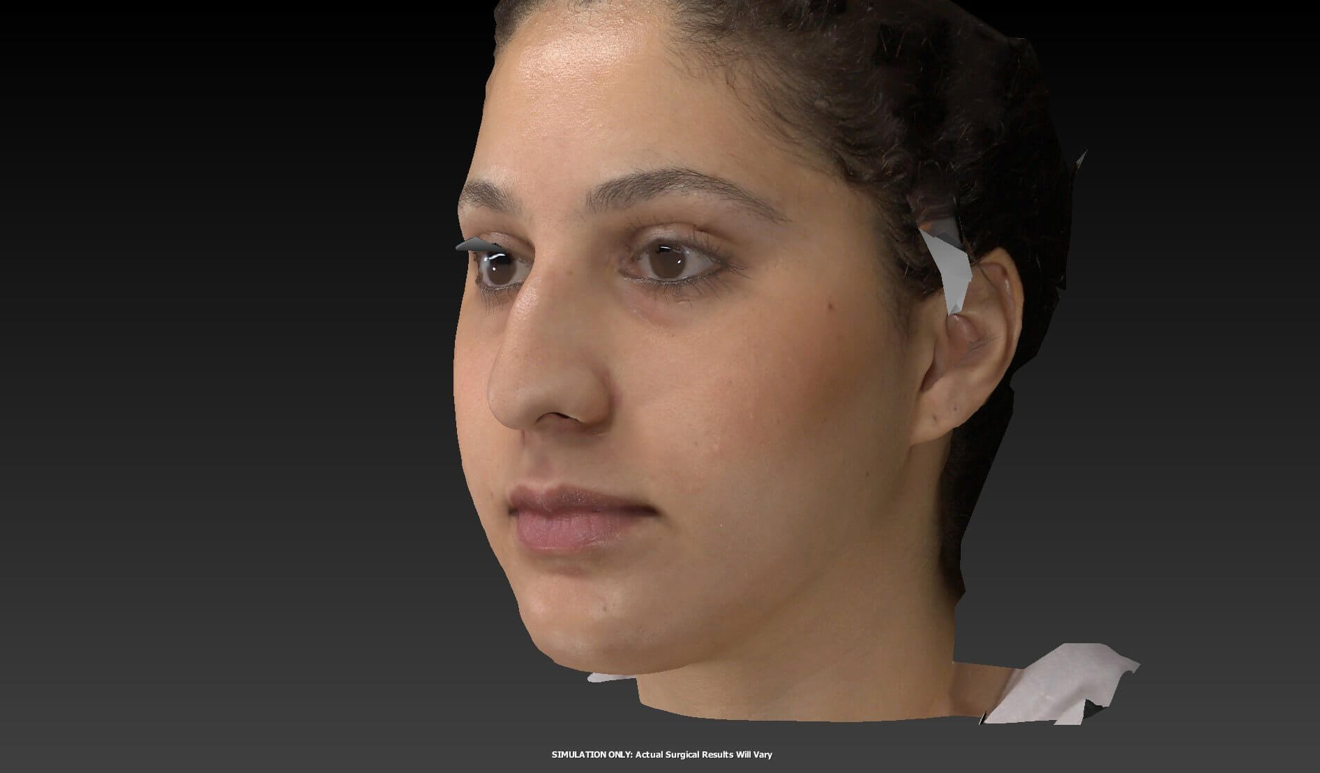 Rhinoplasty Results Before