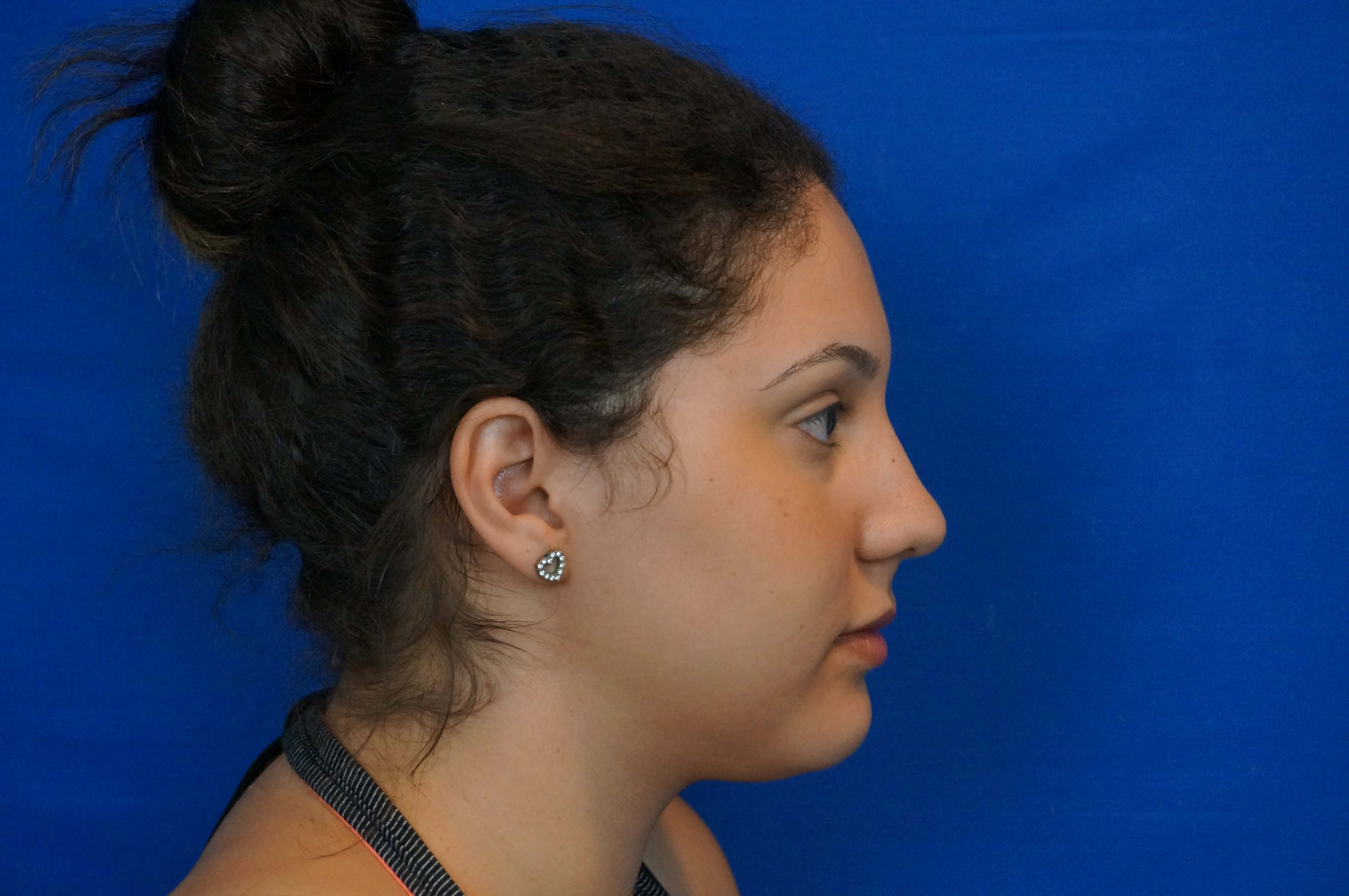 Las Vegas Rhinoplasty After