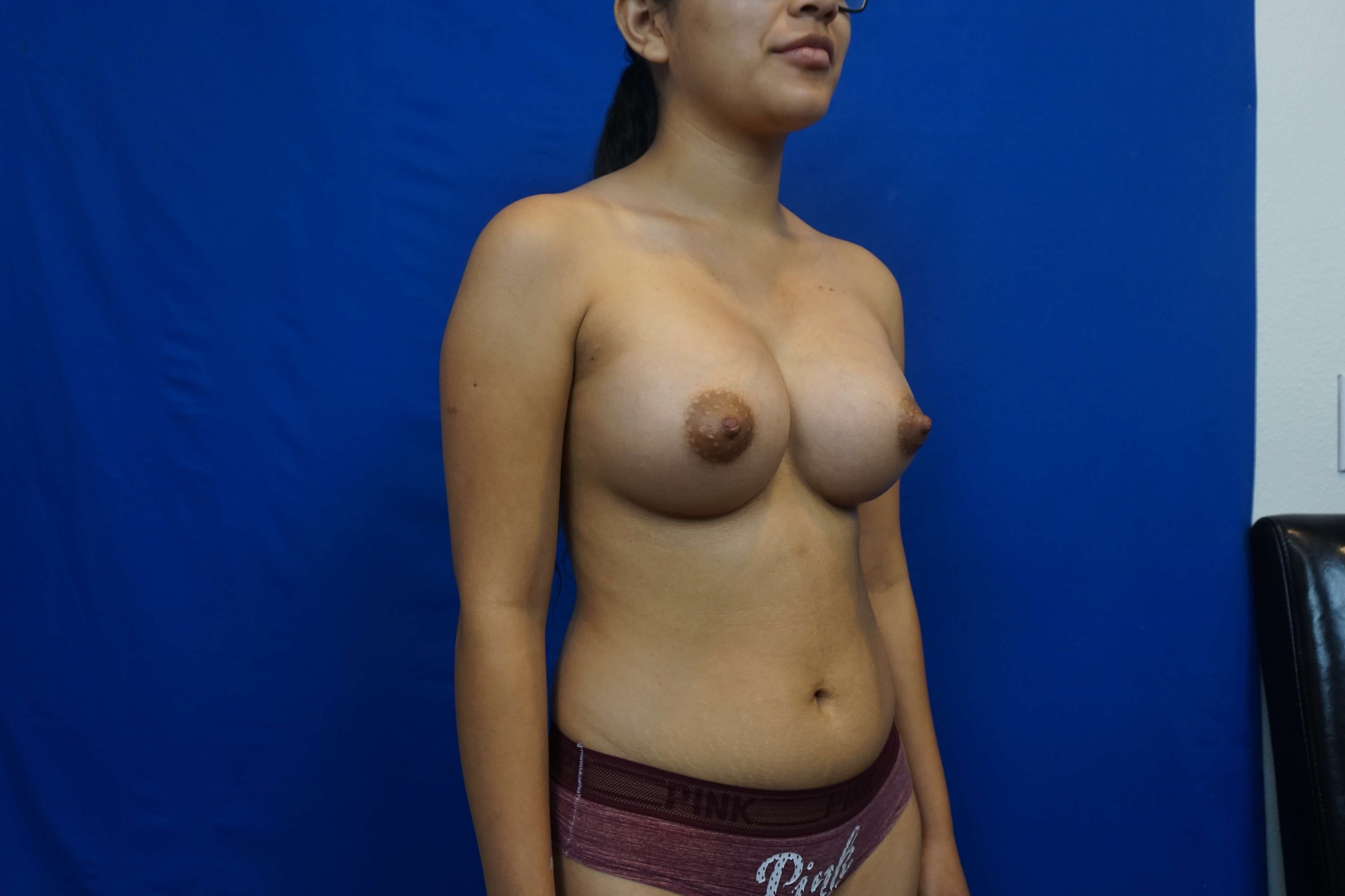 Breast Surgeon Las Vegas After