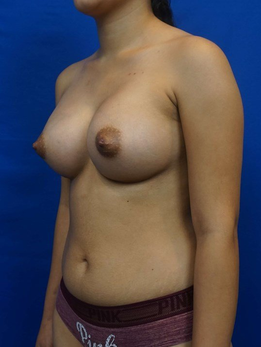 Breast Aug Las Vegas Surgeon After