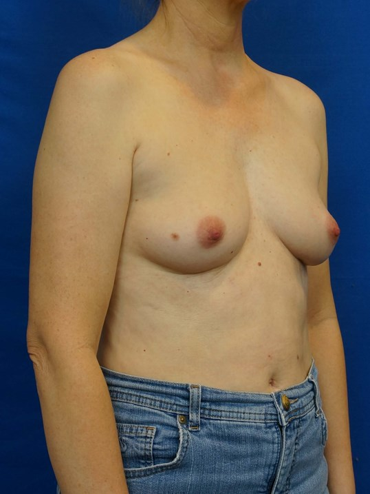 Breast Implant Surgeon Before