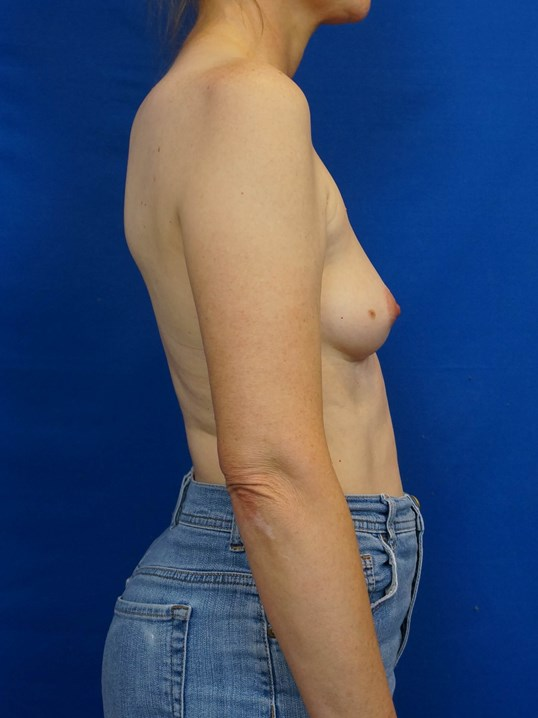 Breast Surgeon Las Vegas Before