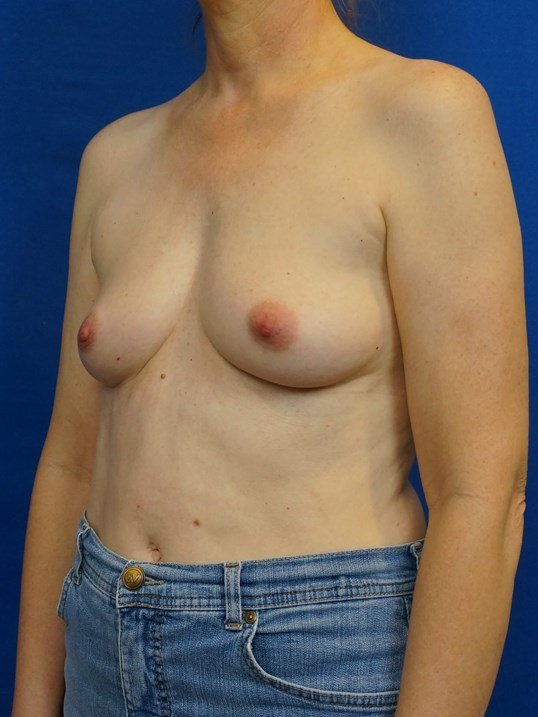Breast Aug Las Vegas Doctor Before