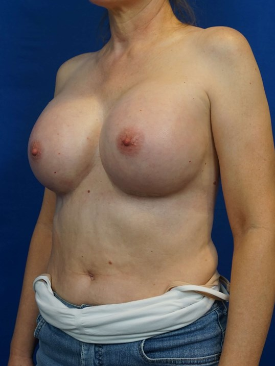 Breast Aug Las Vegas Doctor After