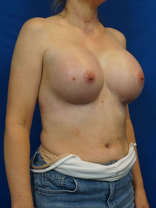 Breast Implant Surgeon After