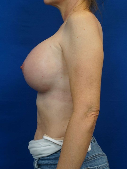 Breast Implant Las Vegas After