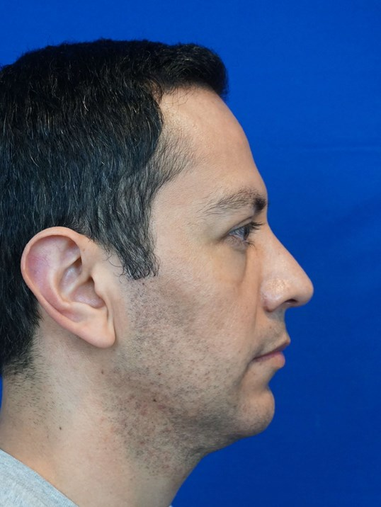Rhinoplasty Surgery Las Vegas After