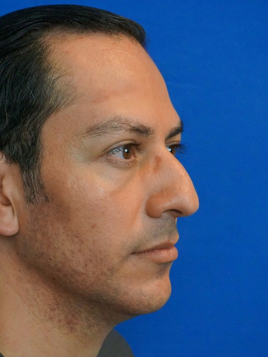 Las Vegas Rhinoplasty Surgeon Before