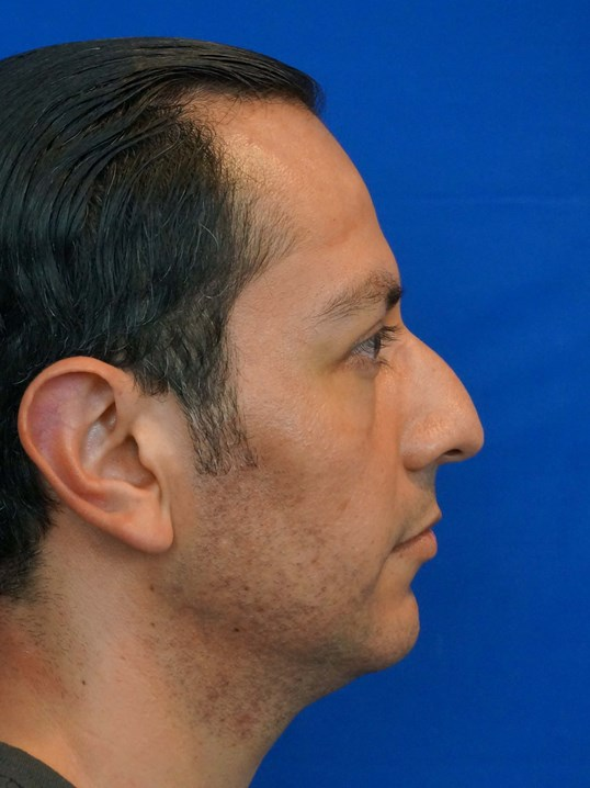Rhinoplasty Surgery Las Vegas Before