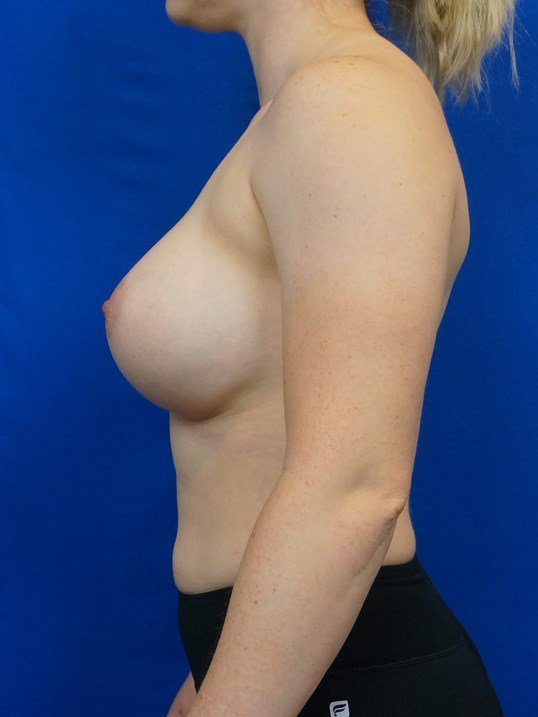 Breast Implant Las Vegas Pics After