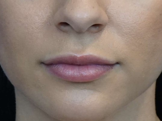 Lip Injection Photos Las Vegas Before