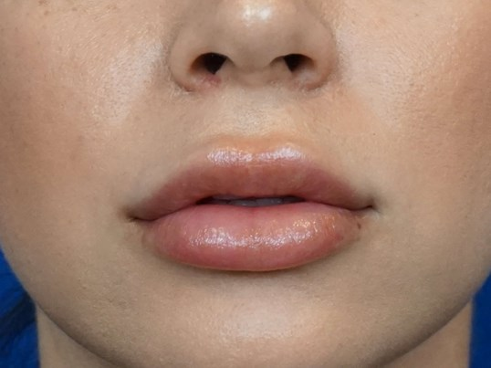 Lip Injection Photos Las Vegas After
