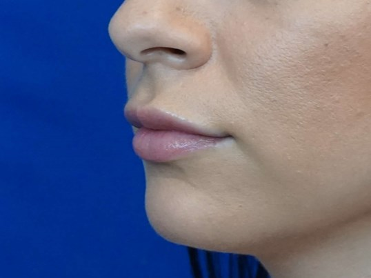 Juvederm Lips Picture Before