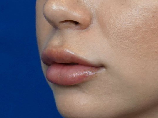 Juvederm Lips Picture After
