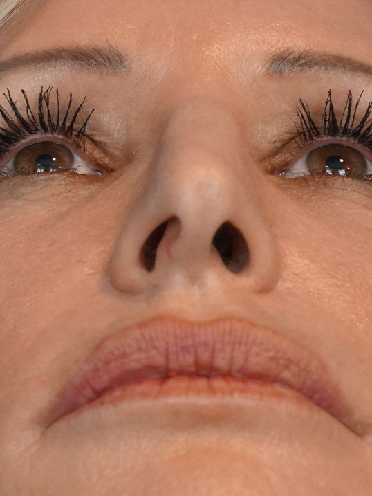 Rhinoplasty Pictures Las Vegas Before