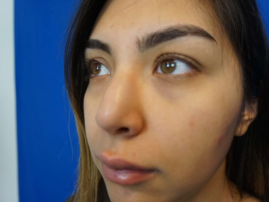 Revision Rhinoplasty Before