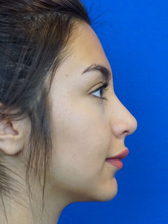Nose Job Revision After
