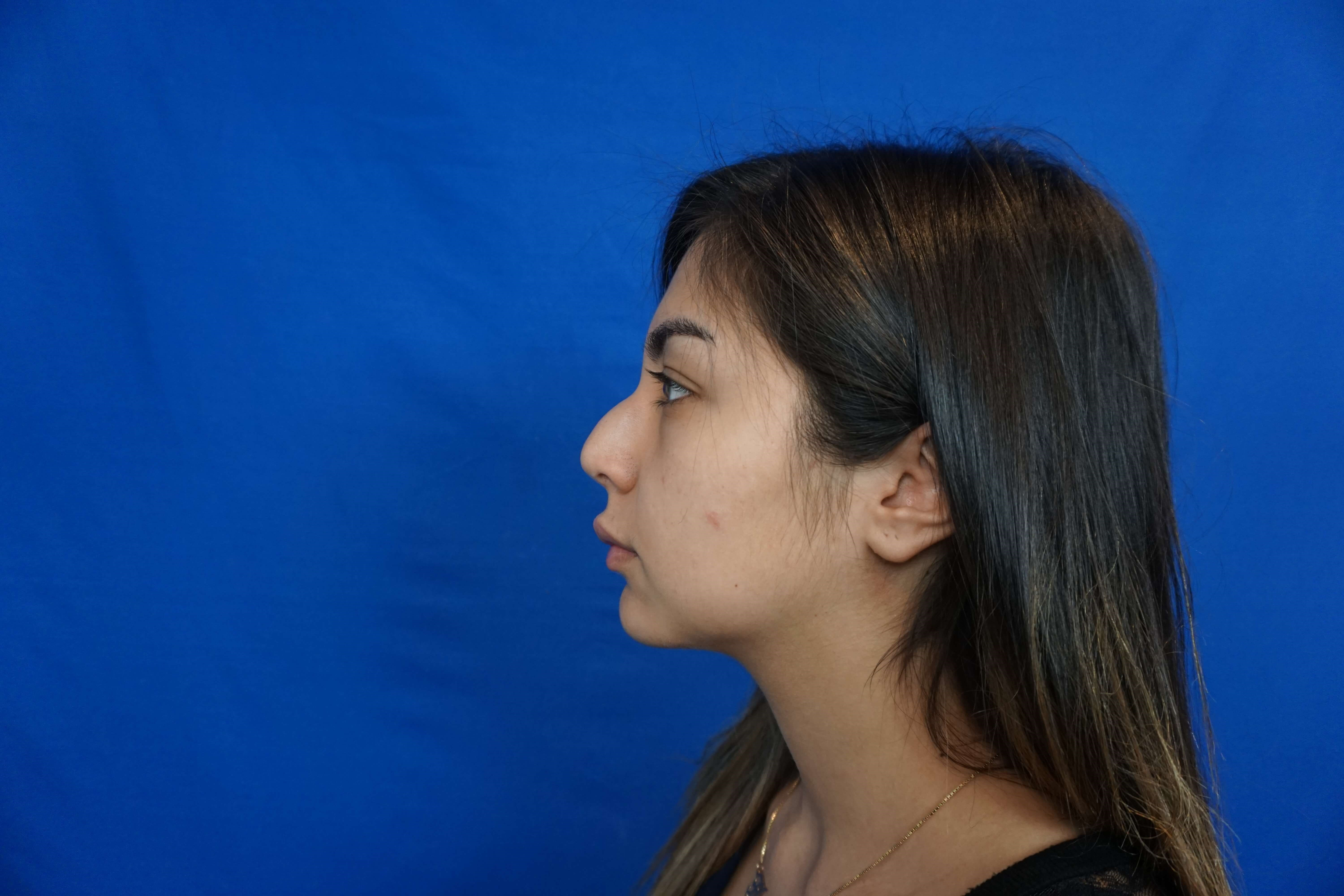 Revision Rhinoplasty Las Vegas Before