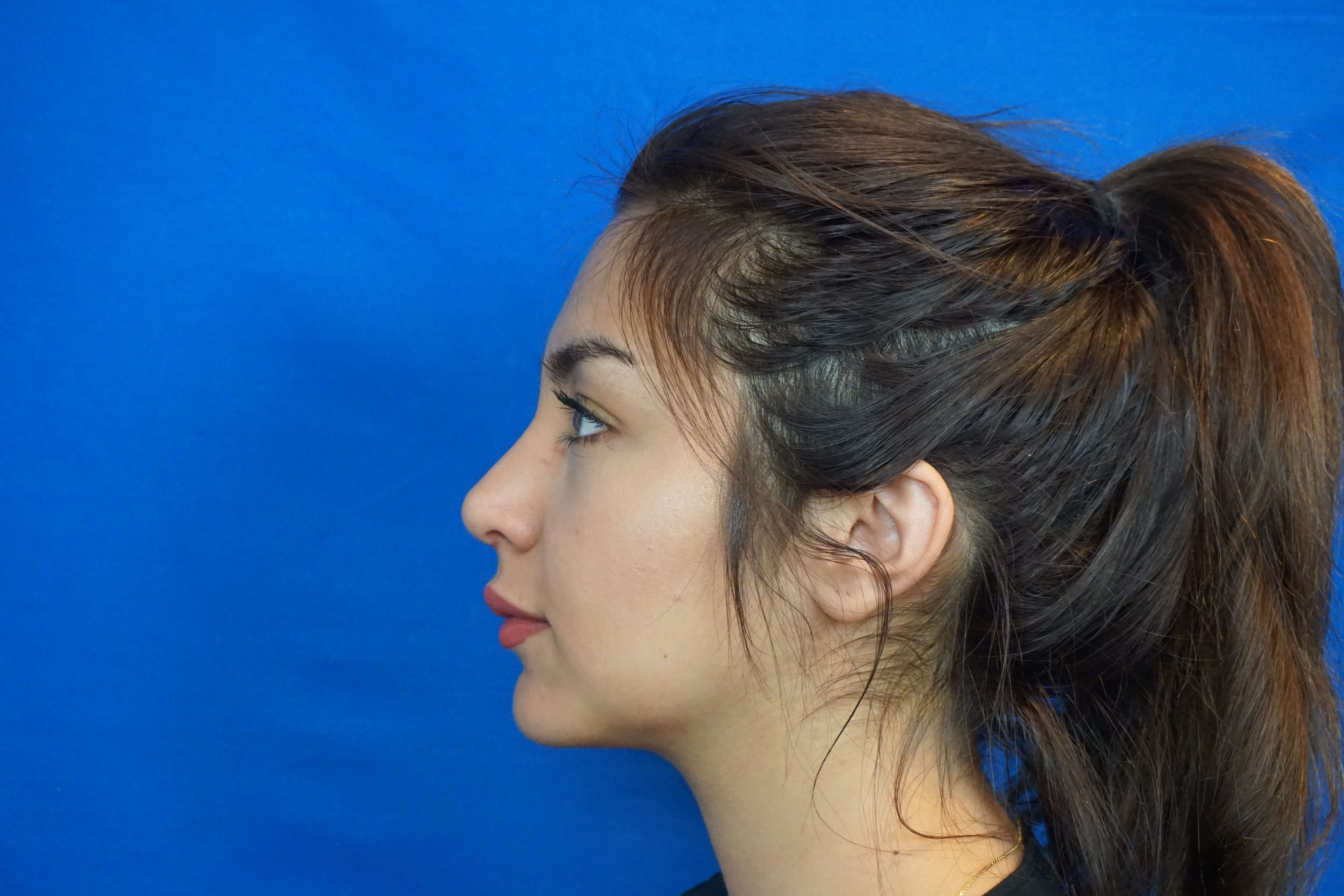Revision Rhinoplasty Las Vegas After