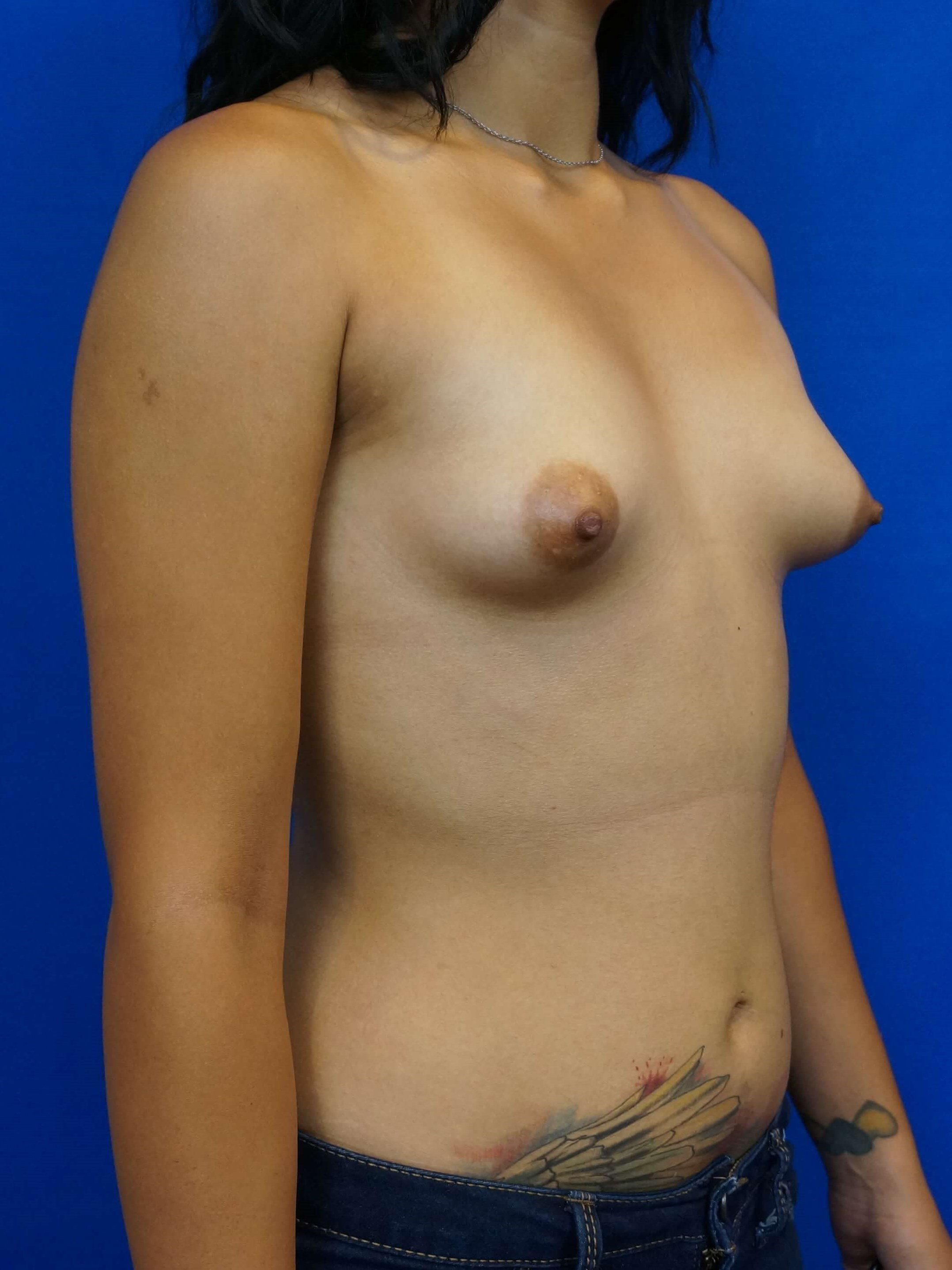 Constricted Breast Treatment Before