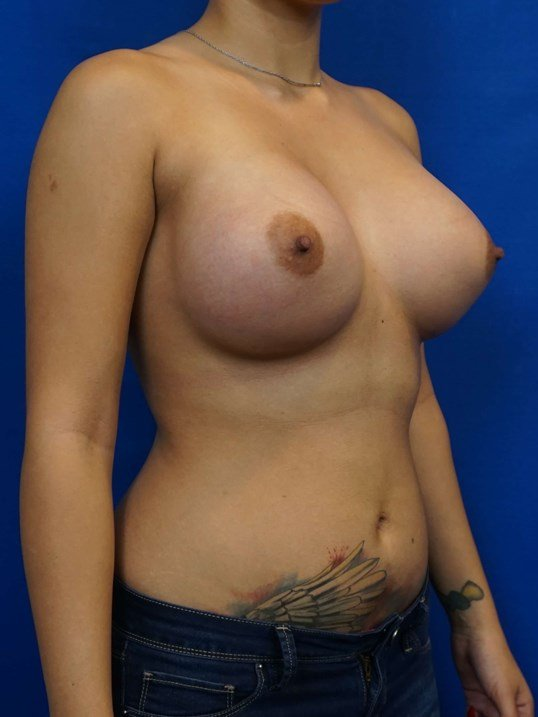 Constricted Breast Treatment After