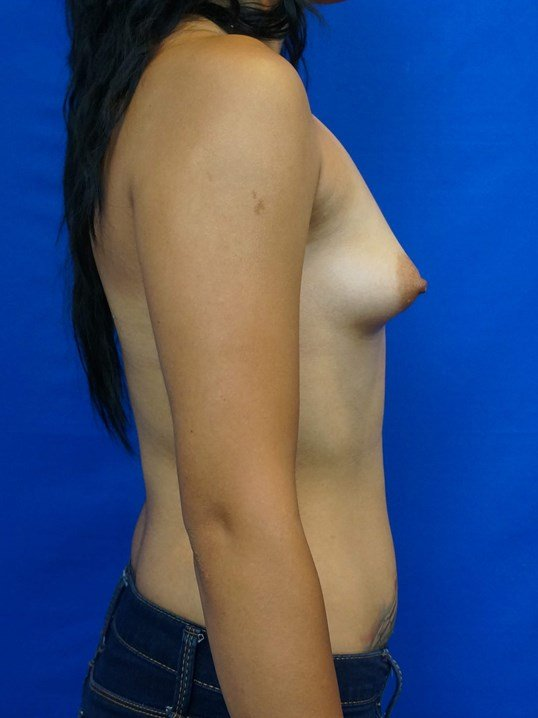 Correction of Tuberous Breasts Before