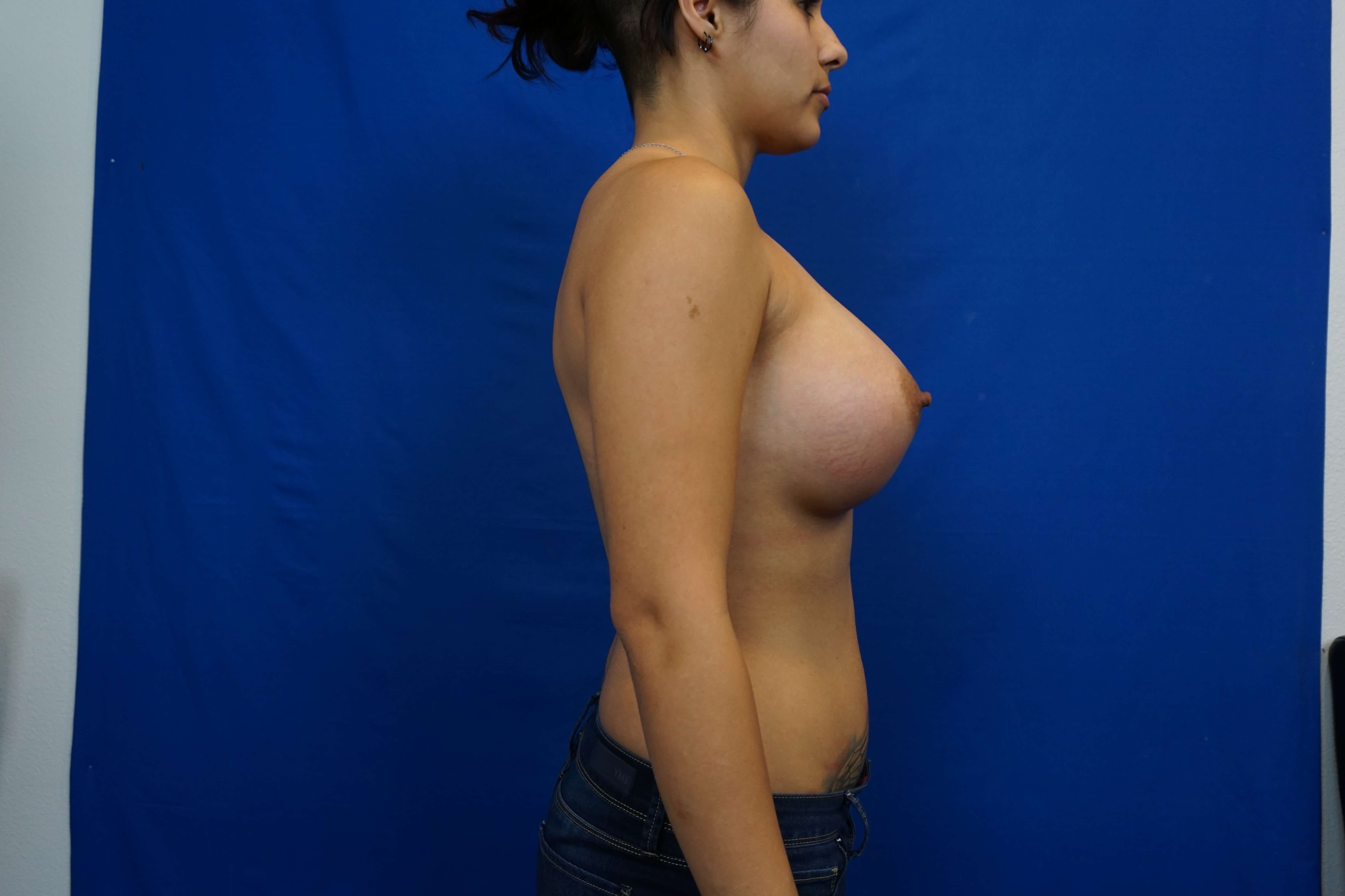 Correction of Tuberous Breasts After