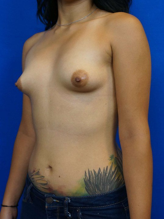 Tuberous Constricted Breast Before