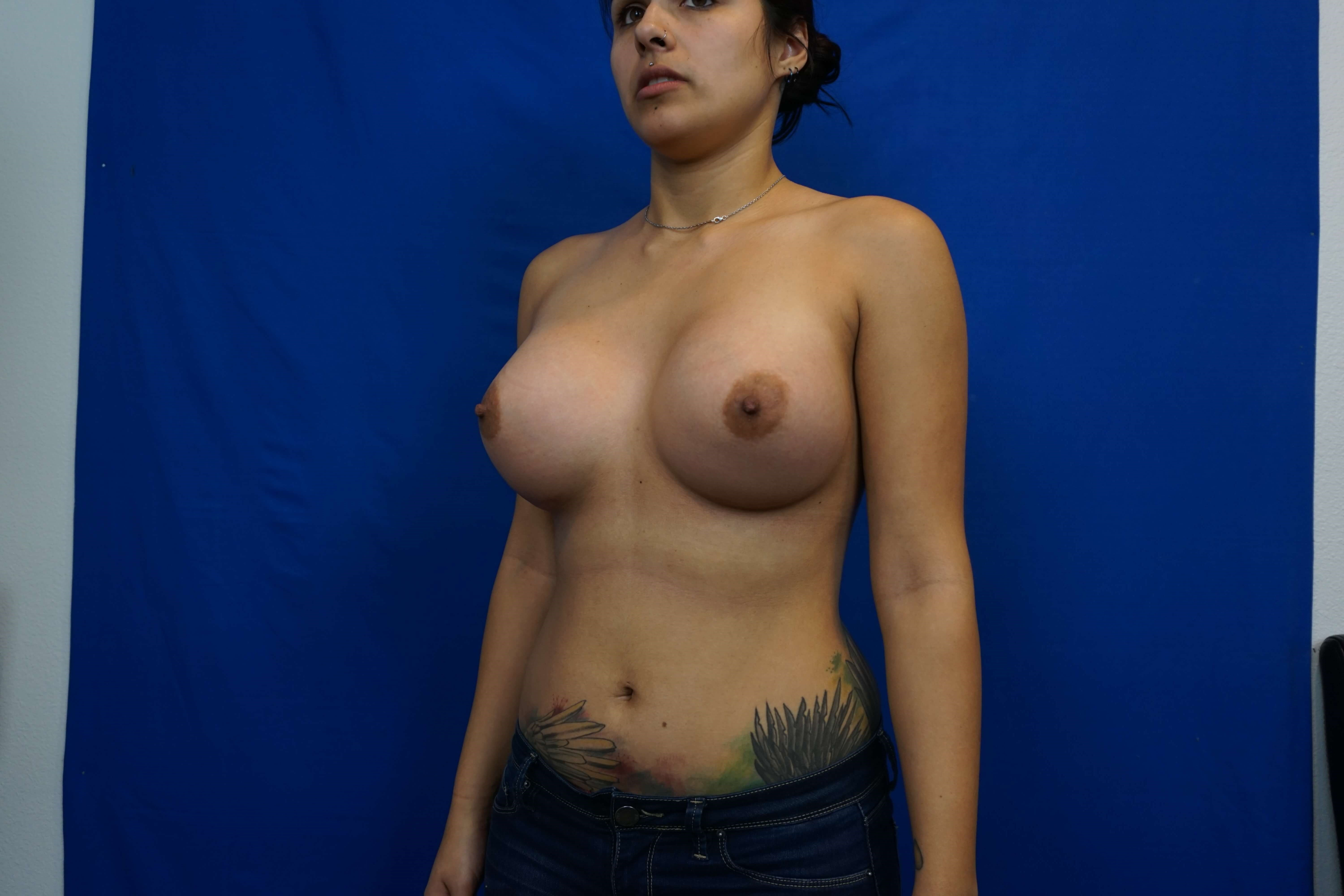 Tuberous Constricted Breast After