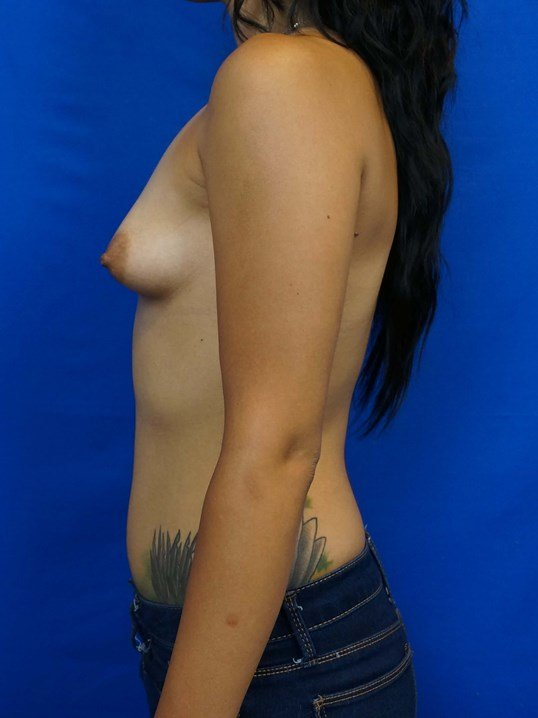 Tuberous Breast Treatment Before